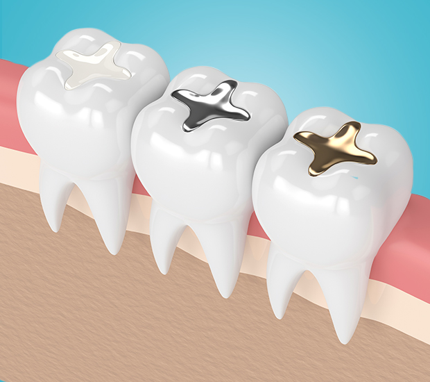 composite fillings in woodland hills ca
