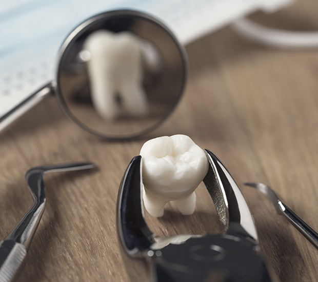 Woodland Hills When Is a Tooth Extraction Necessary